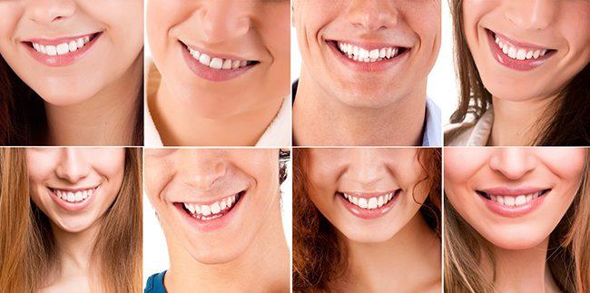 Dental Services Global Market