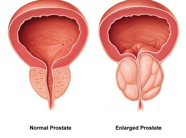 Global Drugs For Benign Prostatic Hypertrophy Market