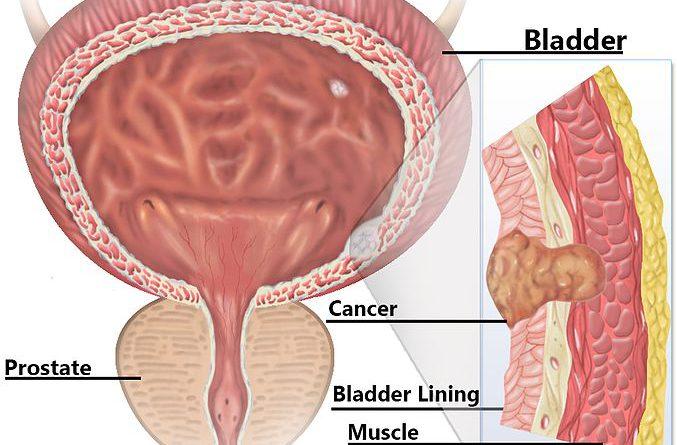 Global Bladder Cancer Drugs Market