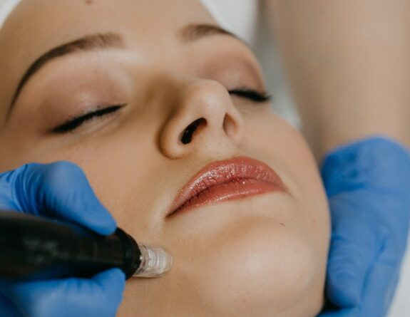 Global Cosmetic Lasers Market