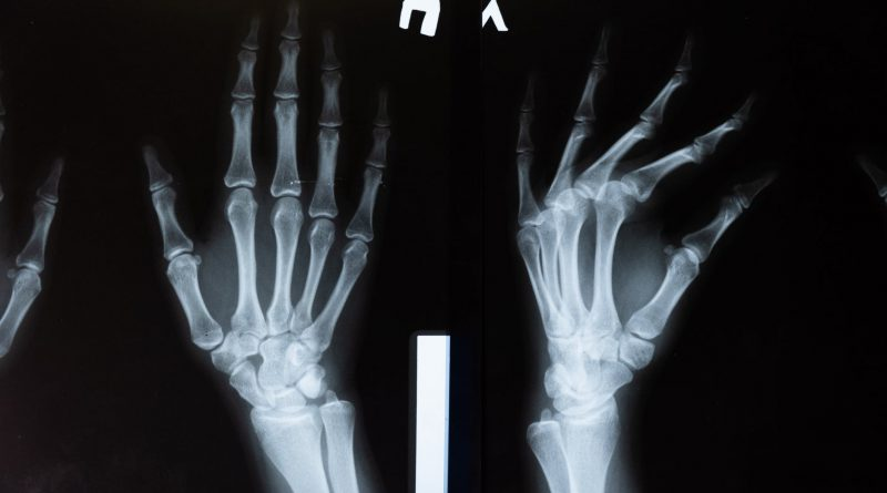 Global Joint Reconstruction Devices And Equipment Market