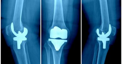 Joint Reconstruction Devices and Equipment Market